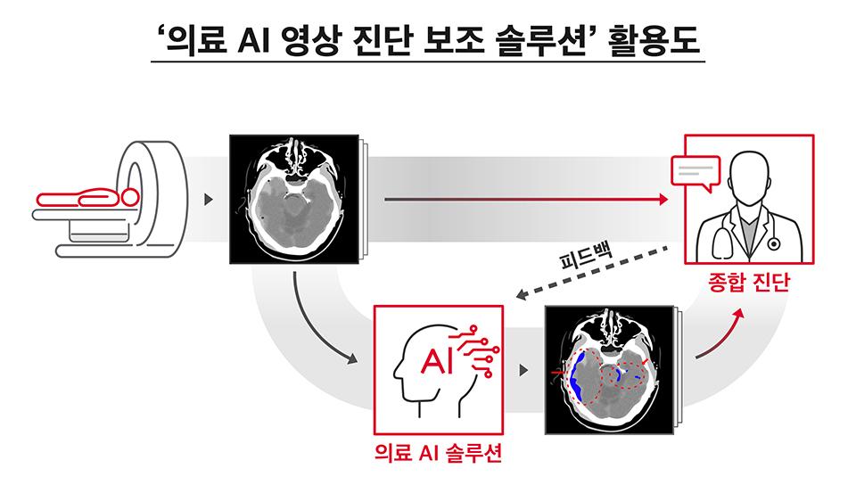 SKT, 인공지능, AI, 초협력, AI영상진단, 의료영상진단